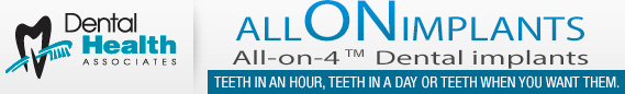 Allonimplants Logo